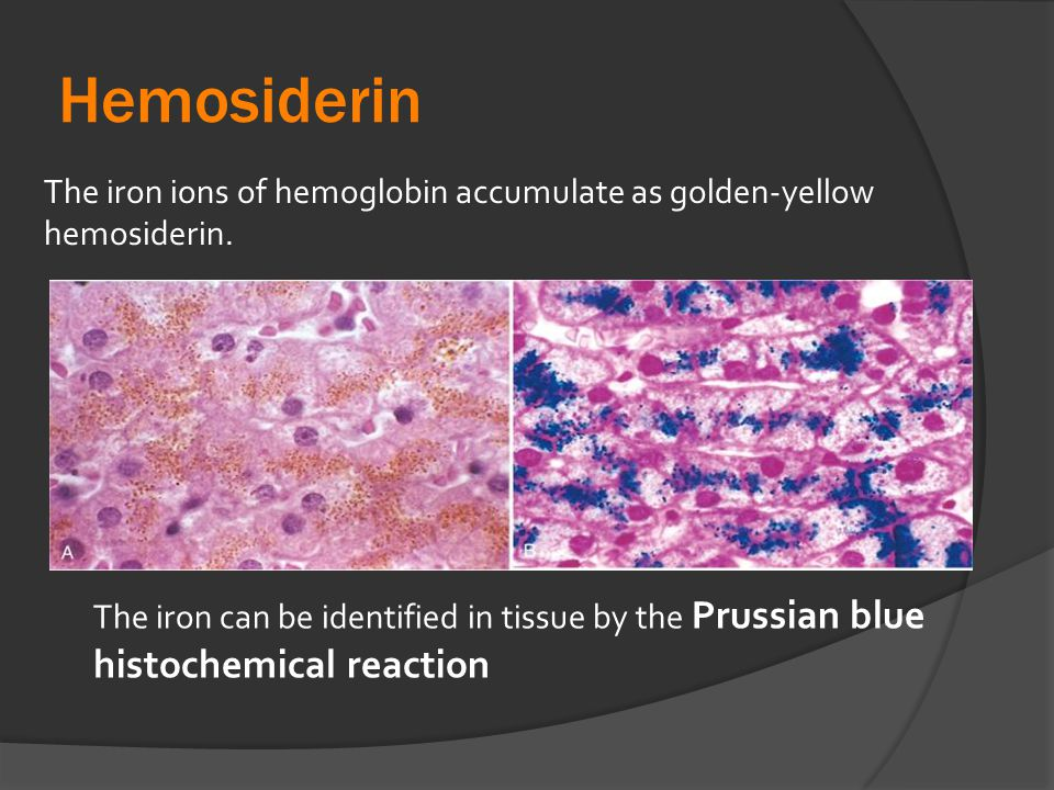 Hemosiderin The iron ions of hemoglobin accumulate as golden-yellow hemosiderin.