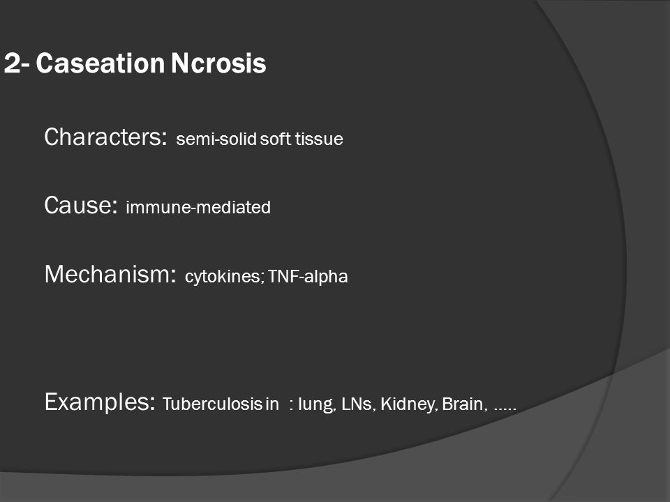 2- Caseation Ncrosis Characters: semi-solid soft tissue