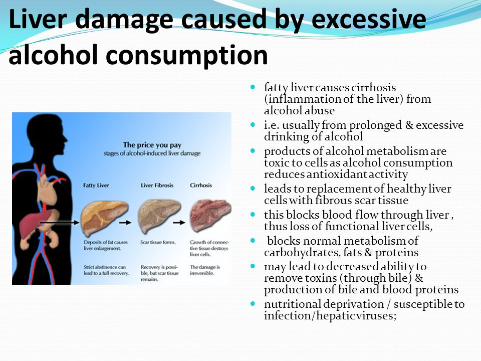 Liver damage caused by excessive alcohol consumption