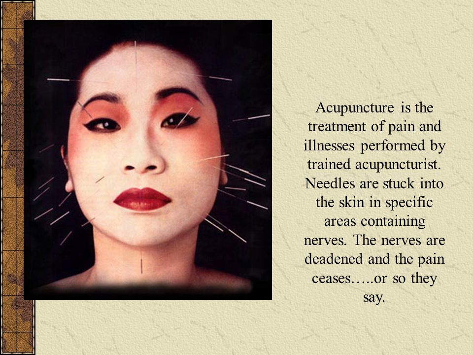 Acupuncture is the treatment of pain and illnesses performed by trained acupuncturist.