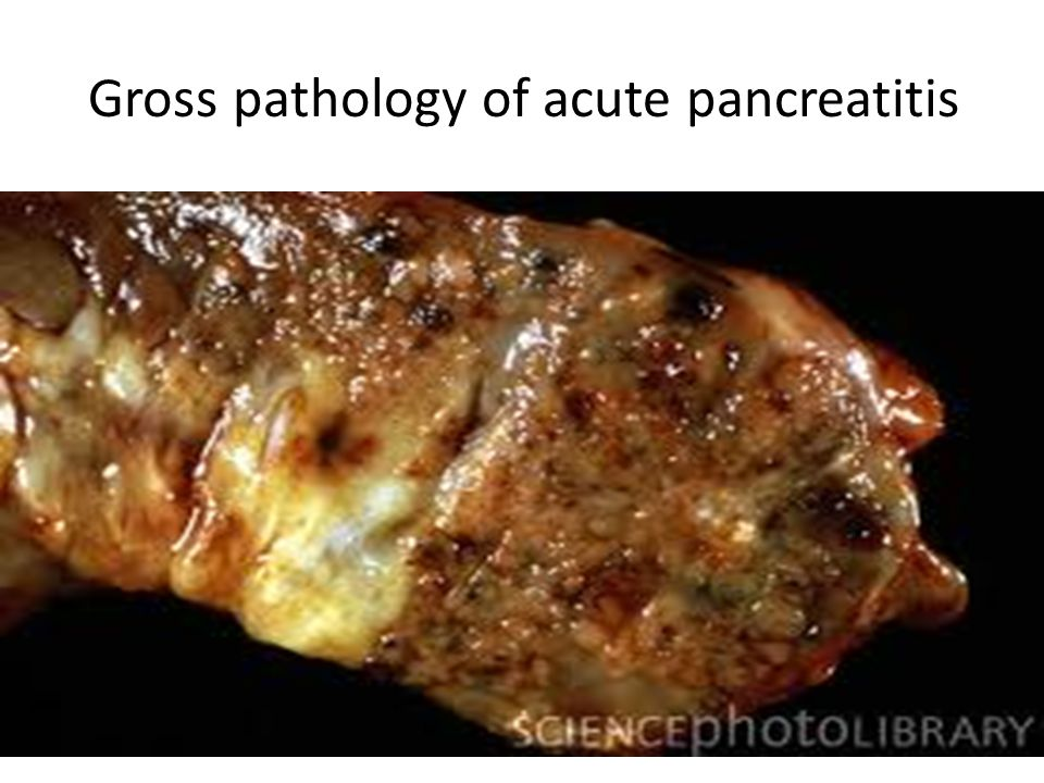 Gross pathology of acute pancreatitis