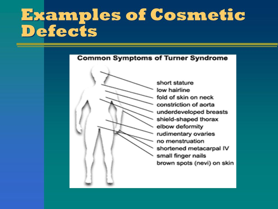 Examples of Cosmetic Defects