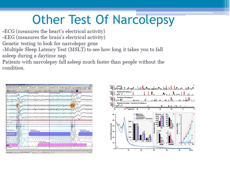 Other Test Of Narcolepsy
