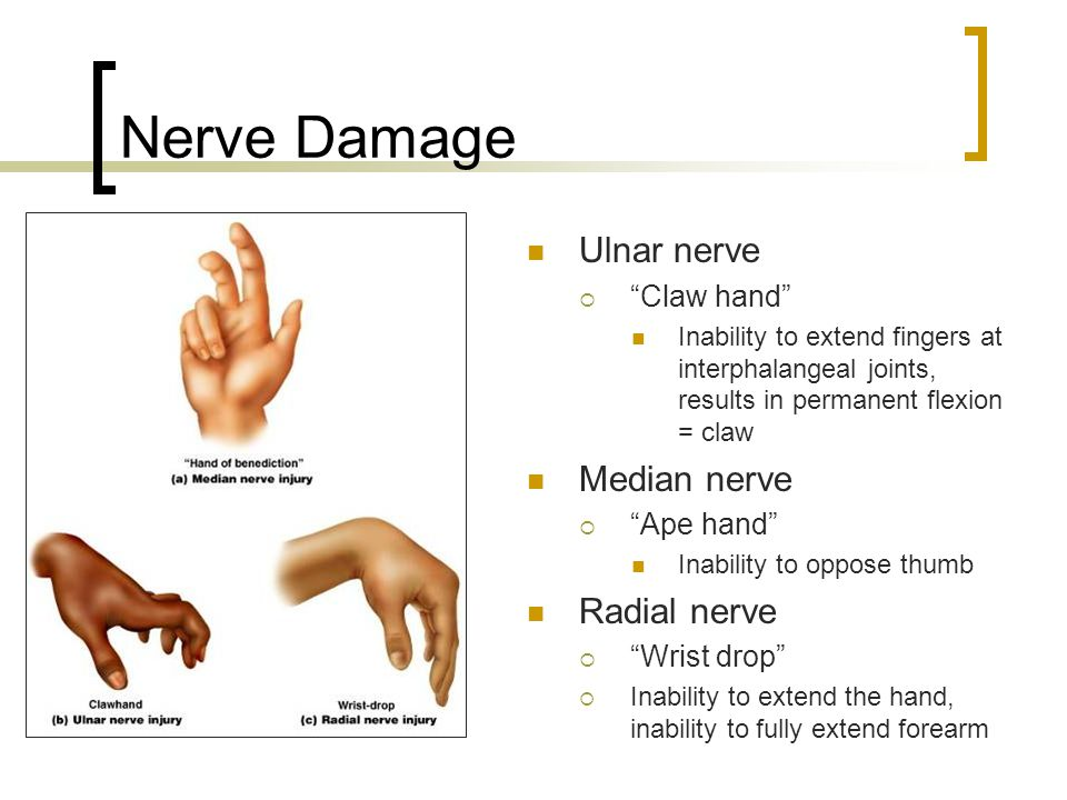 Nerve Damage Ulnar nerve Median nerve Radial nerve Claw hand