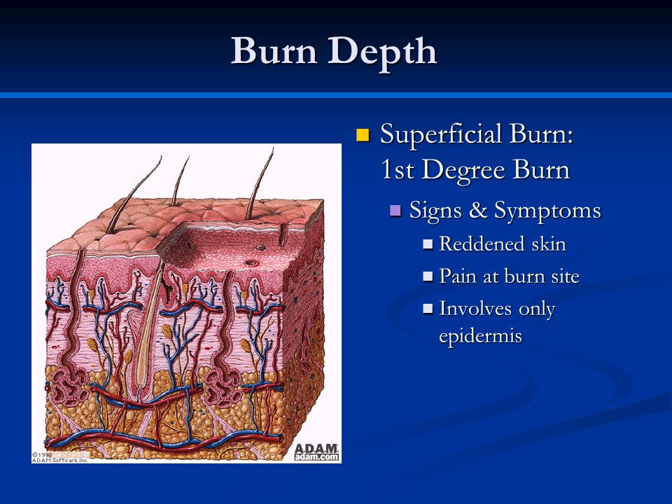 Burn Depth Superficial Burn: 1st Degree Burn Signs & Symptoms