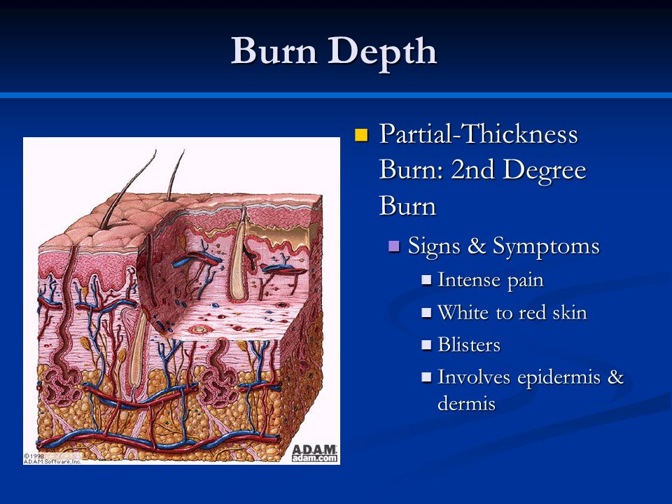Burn Depth Partial-Thickness Burn: 2nd Degree Burn Signs & Symptoms