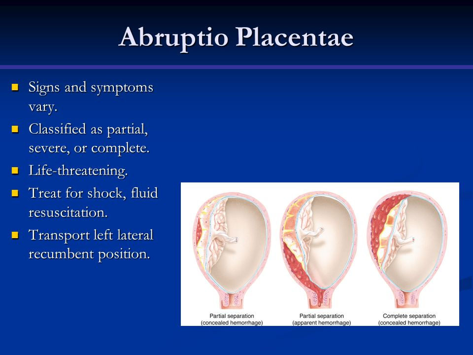 Abruptio Placentae Signs and symptoms vary.