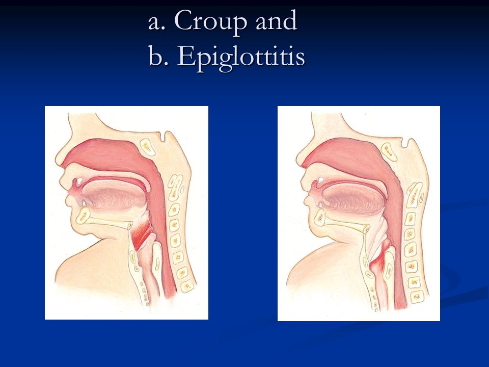 a. Croup and b. Epiglottitis
