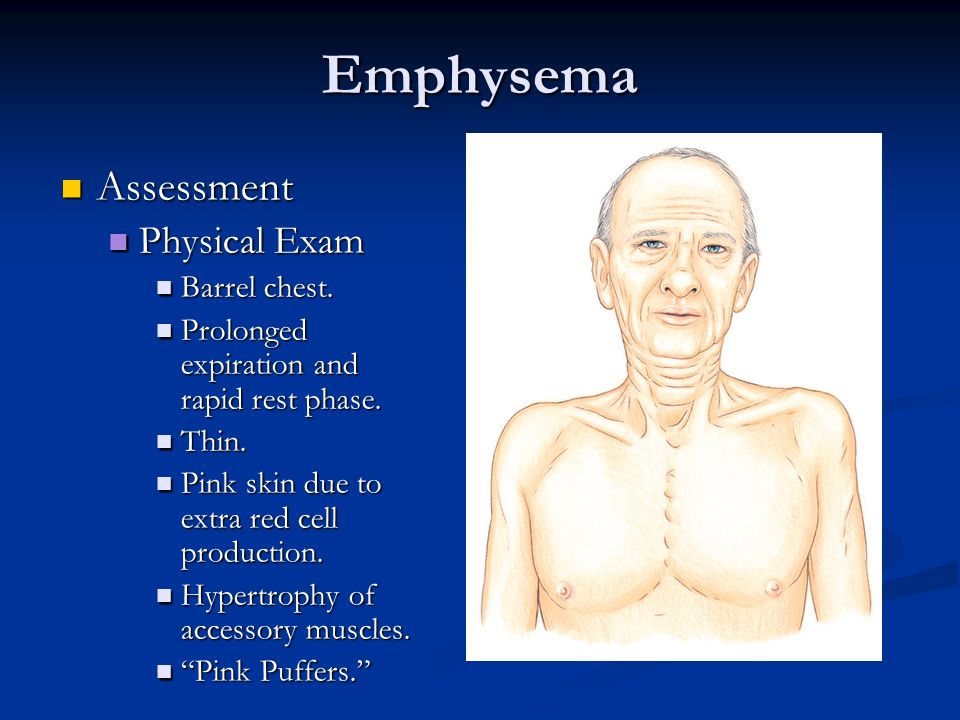Emphysema Assessment Physical Exam Barrel chest.
