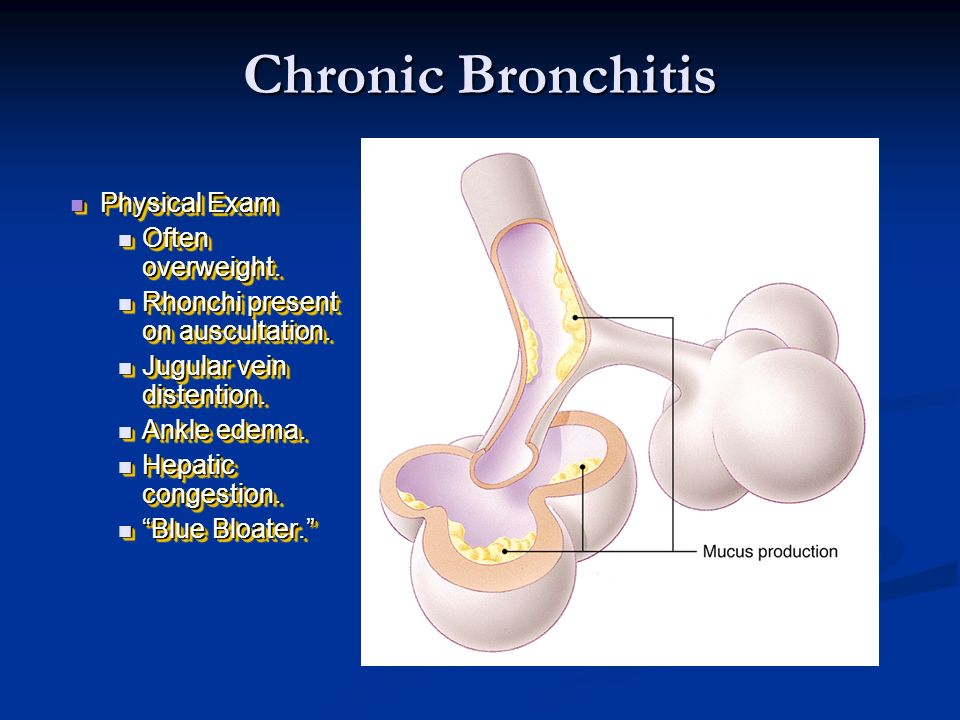 Chronic Bronchitis Physical Exam Often overweight.