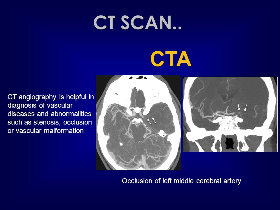CT SCAN.. CTA. CT angiography is helpful in diagnosis of vascular diseases and abnormalities such as stenosis, occlusion or vascular malformation.
