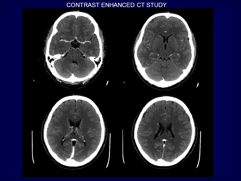 CONTRAST ENHANCED CT STUDY