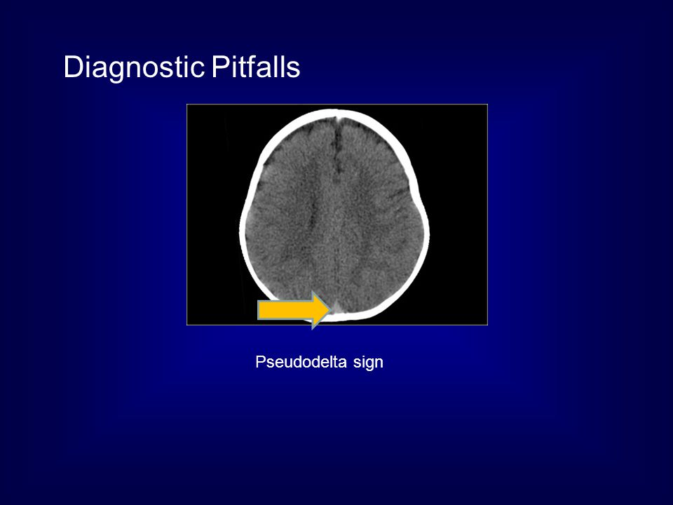 Diagnostic Pitfalls Pseudodelta sign