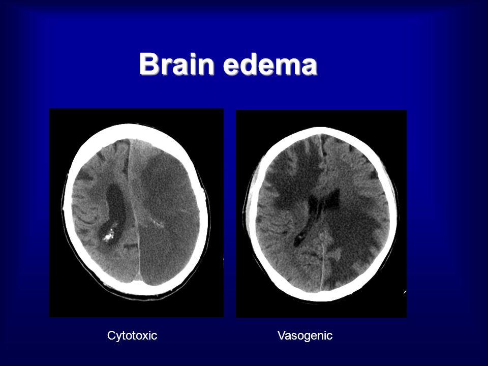 Brain edema Cytotoxic Vasogenic