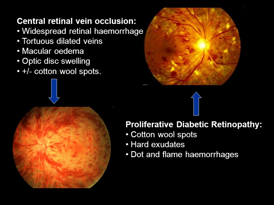 Central retinal vein occlusion: Widespread retinal haemorrhage