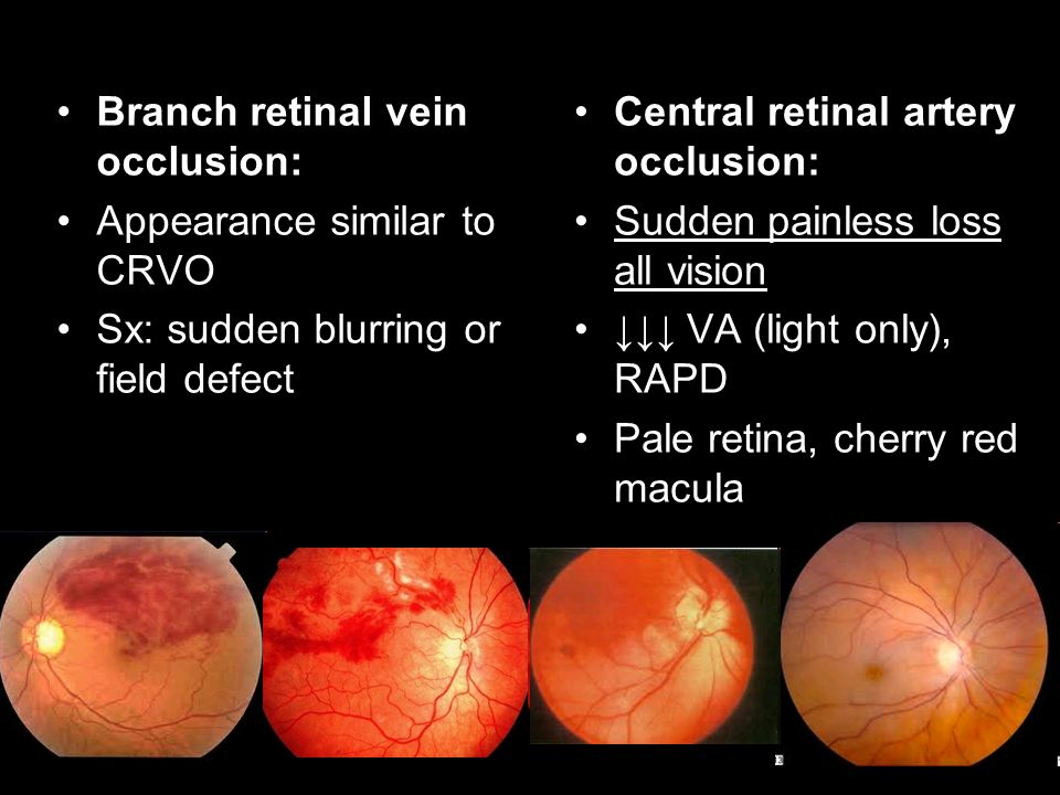 Branch retinal vein occlusion: Appearance similar to CRVO