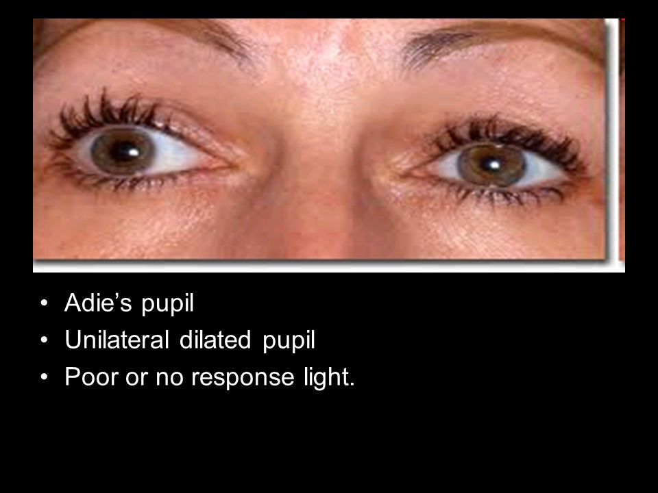 Unilateral dilated pupil Poor or no response light.