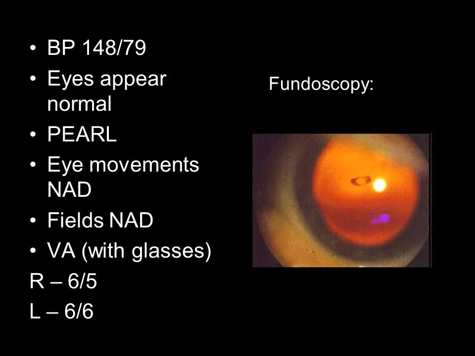 BP 148/79 Eyes appear normal PEARL Eye movements NAD Fields NAD