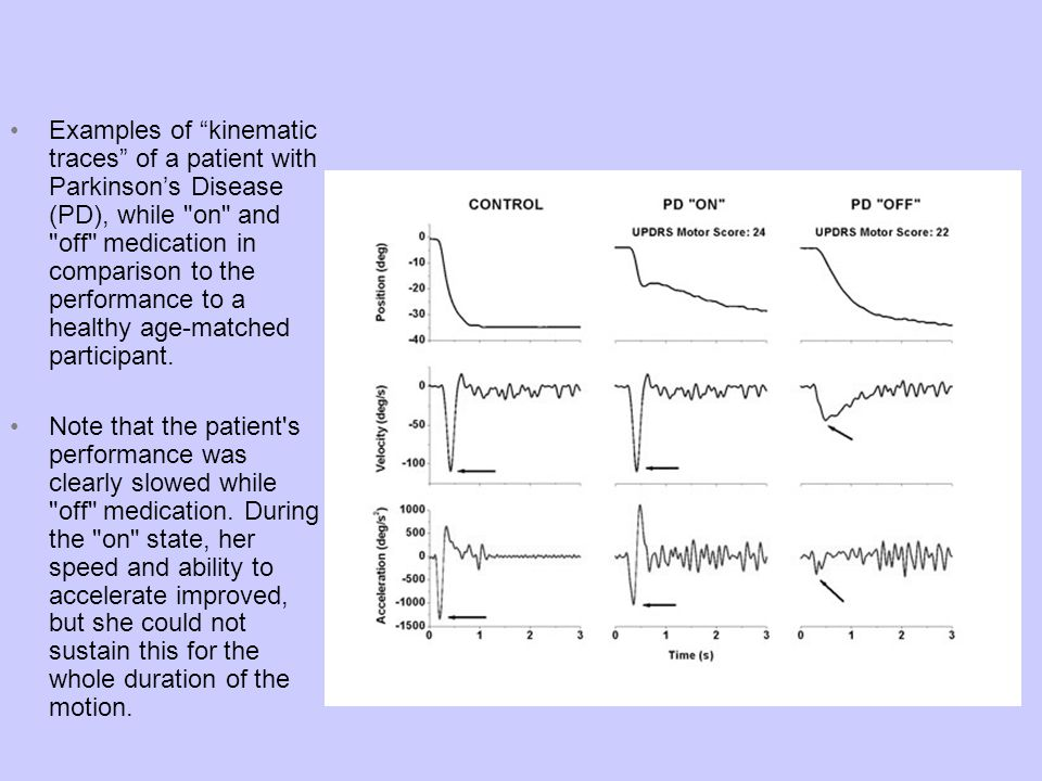 Examples of kinematic traces of a patient with Parkinson's Disease (PD), while on and off medication in comparison to the performance to a healthy age-matched participant.