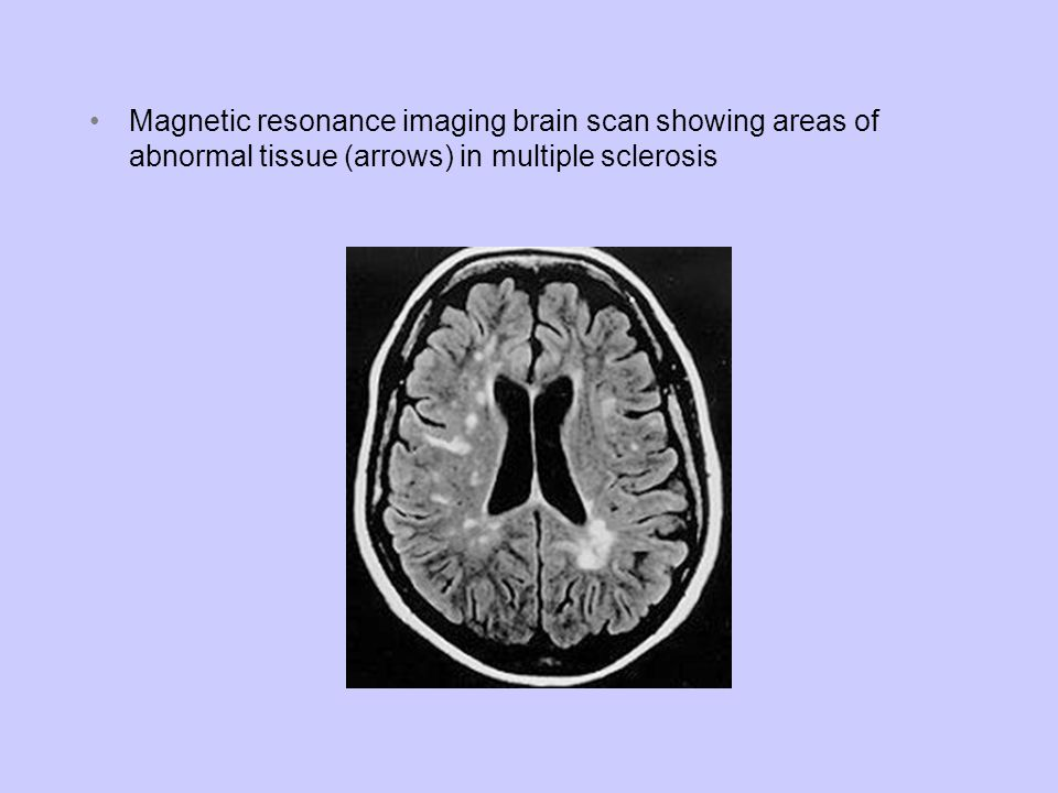 Magnetic resonance imaging brain scan showing areas of abnormal tissue (arrows) in multiple sclerosis