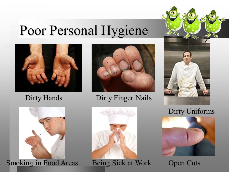 Poor Personal Hygiene Dirty Hands Dirty Finger Nails Dirty Uniforms