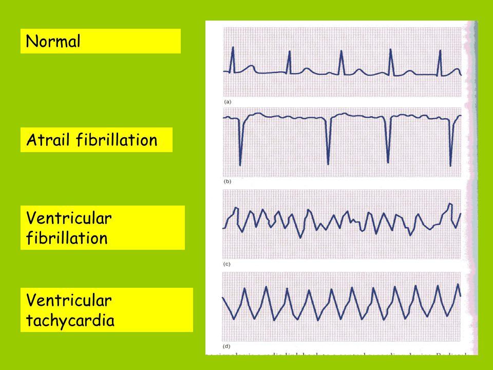 Normal Atrail fibrillation Ventricular fibrillation Ventricular tachycardia