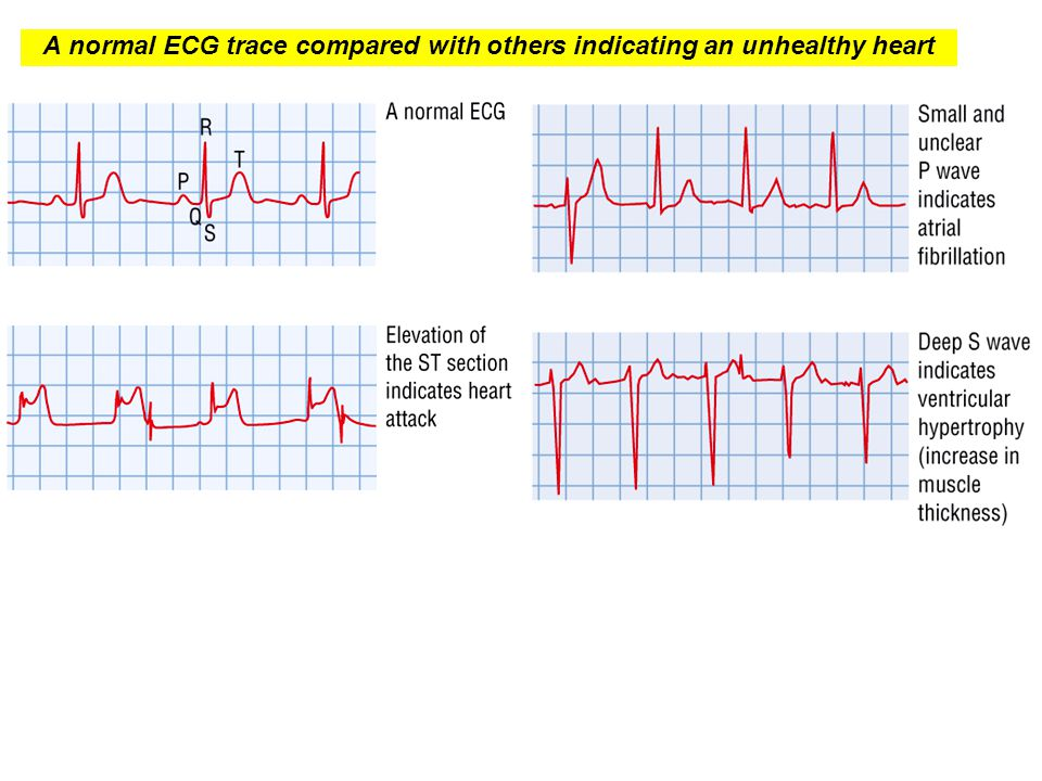 A normal ECG trace compared with others indicating an unhealthy heart