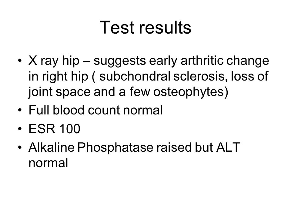 Test results X ray hip – suggests early arthritic change in right hip ( subchondral sclerosis, loss of joint space and a few osteophytes)