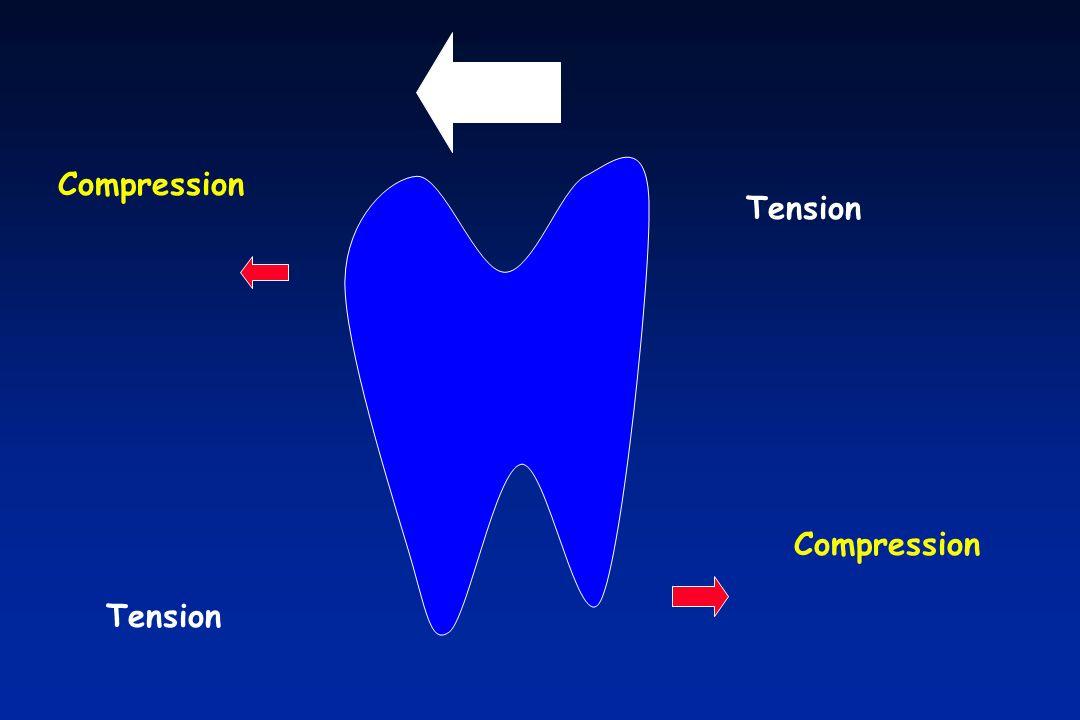 Compression Tension Compression Tension