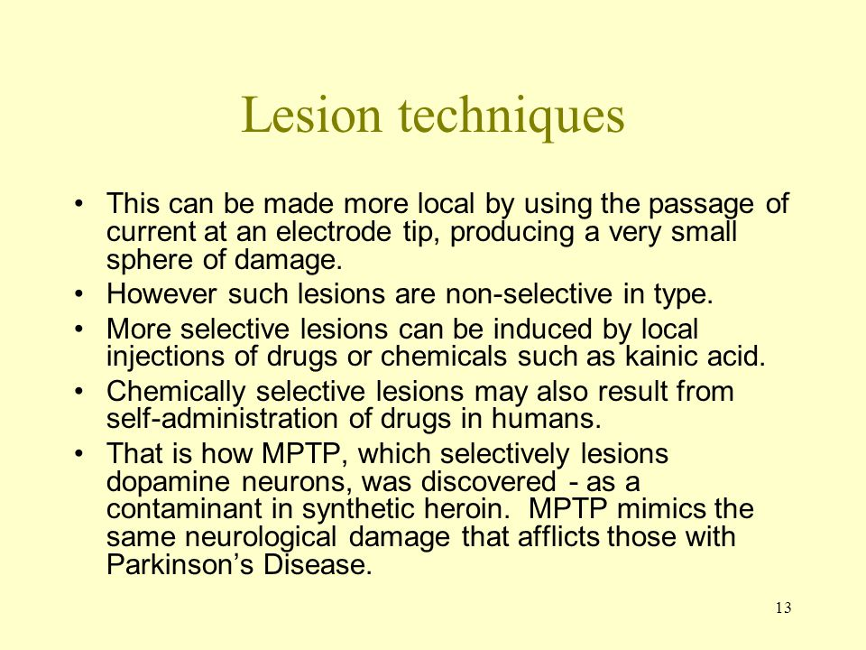 Lesion techniques This can be made more local by using the passage of current at an electrode tip, producing a very small sphere of damage.