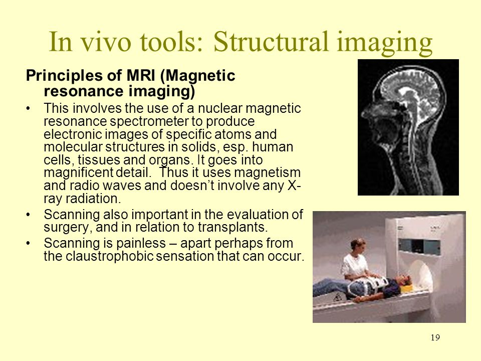 In vivo tools: Structural imaging