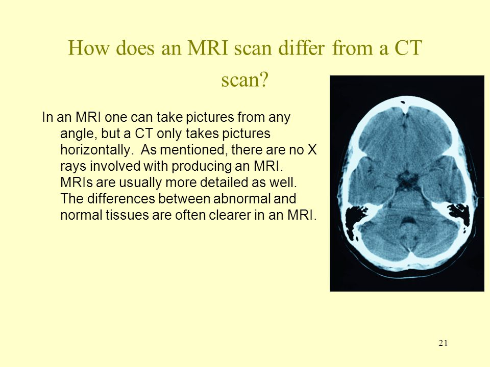 How does an MRI scan differ from a CT scan
