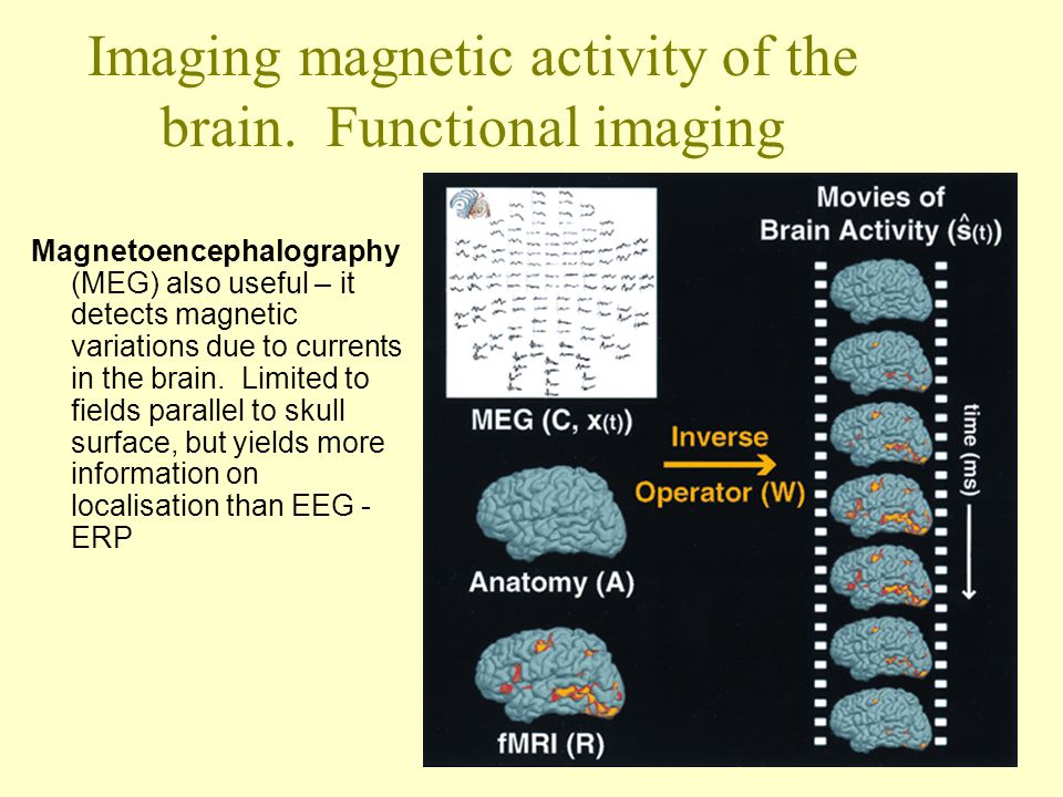 Imaging magnetic activity of the brain. Functional imaging