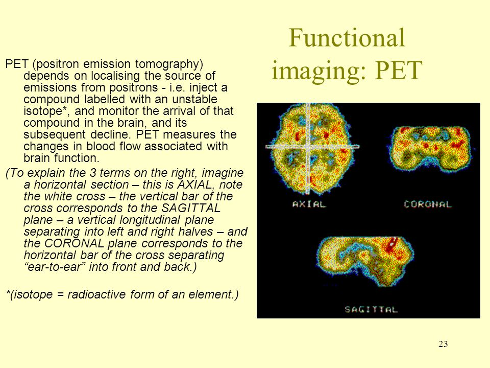 Functional imaging: PET