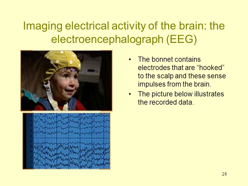 Imaging electrical activity of the brain: the electroencephalograph (EEG)