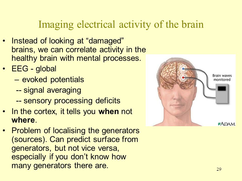 Imaging electrical activity of the brain