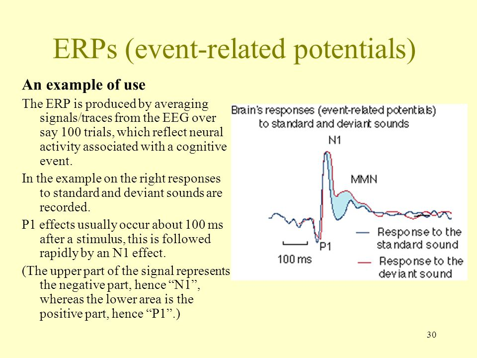 ERPs (event-related potentials)