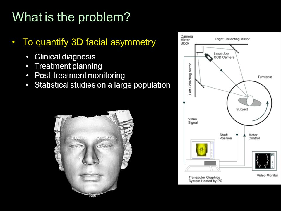 What is the problem To quantify 3D facial asymmetry