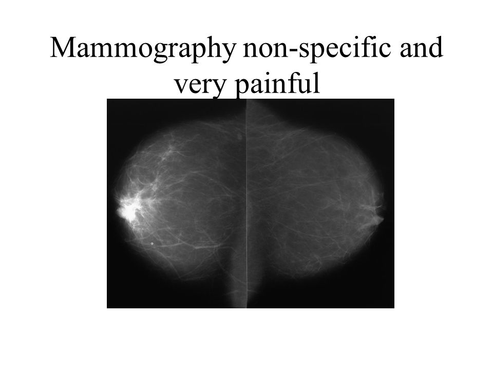 Mammography non-specific and very painful