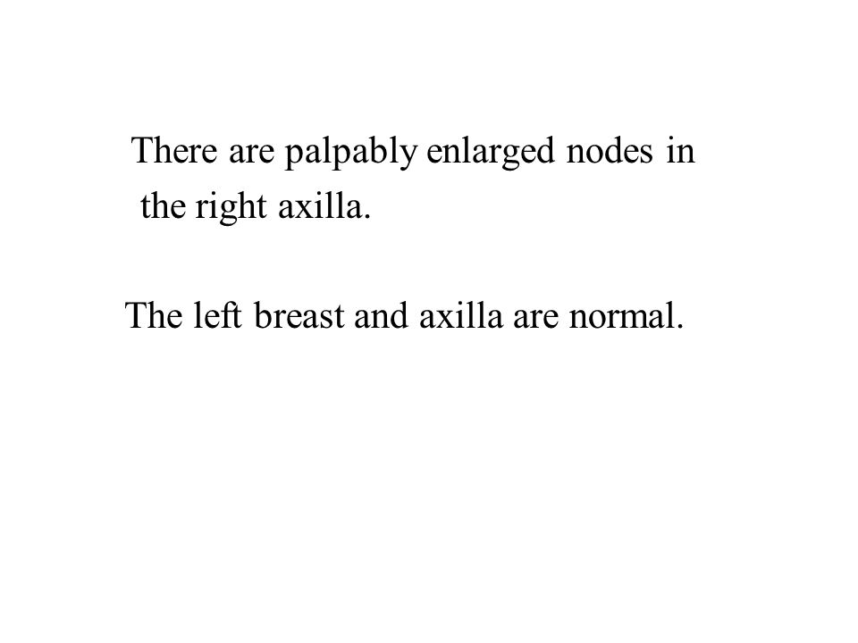 There are palpably enlarged nodes in