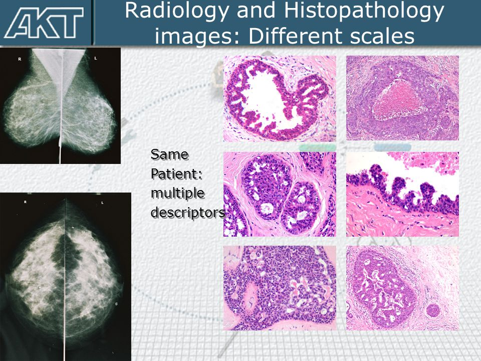 Radiology and Histopathology images: Different scales