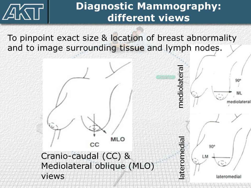 Diagnostic Mammography: different views
