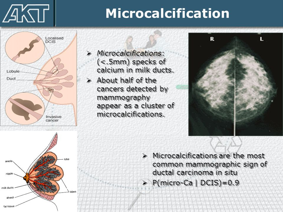 Microcalcification Microcalcifications: (<.5mm) specks of calcium in milk ducts.