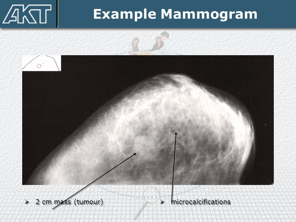 Example Mammogram 2 cm mass (tumour) microcalcifications