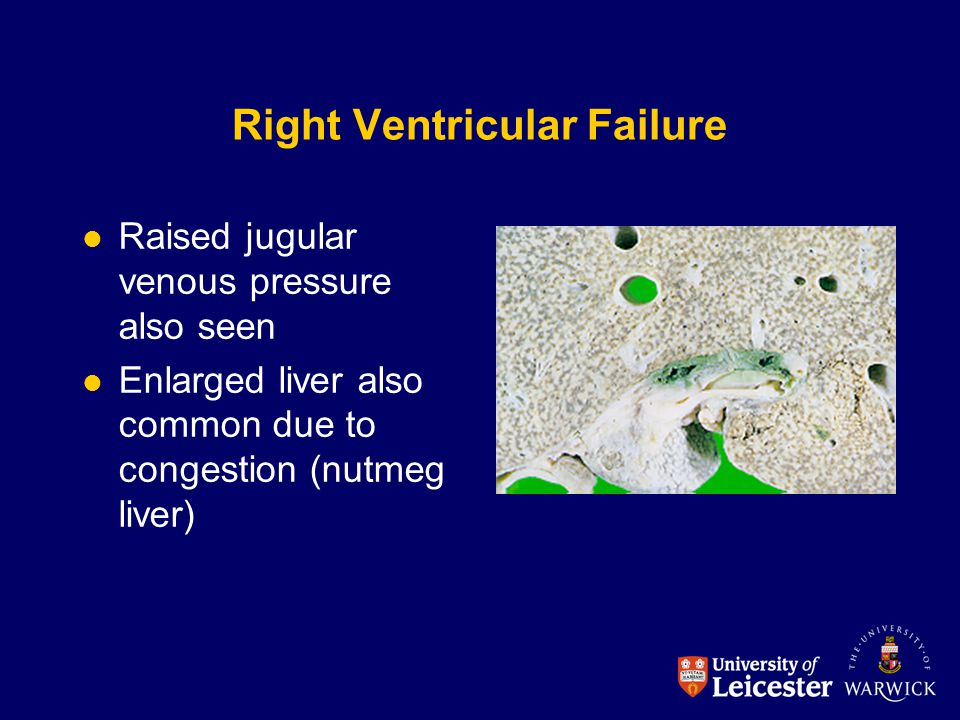 Right Ventricular Failure
