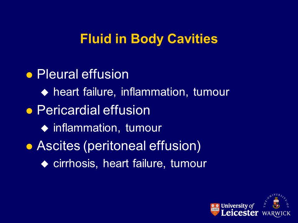 Ascites (peritoneal effusion)