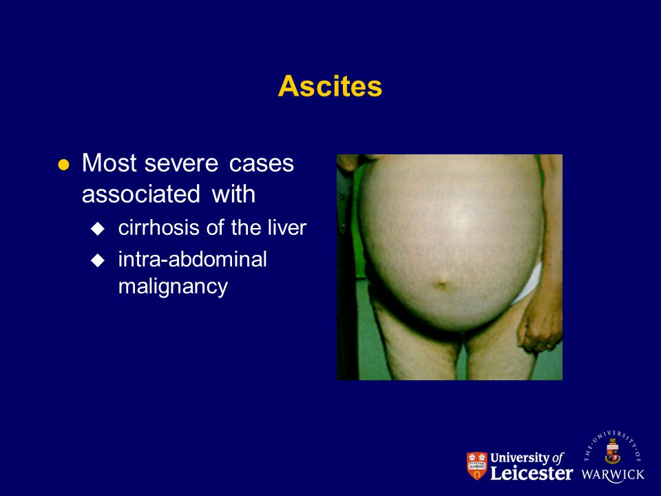 Ascites Most severe cases associated with cirrhosis of the liver
