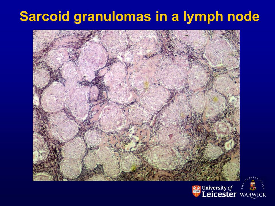 Sarcoid granulomas in a lymph node