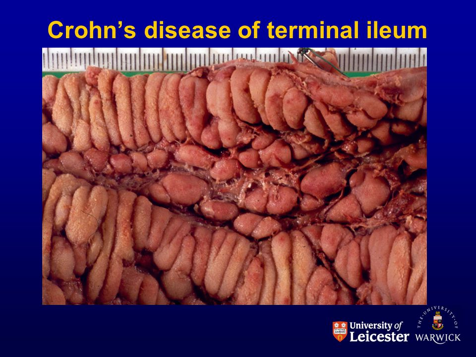 Crohn's disease of terminal ileum