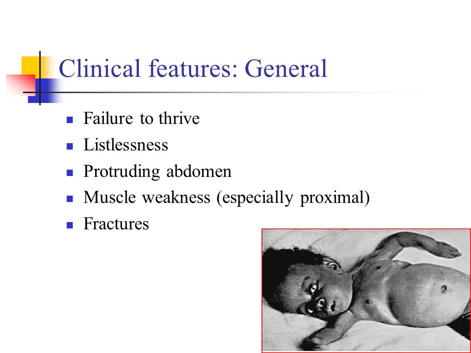 Clinical features: General